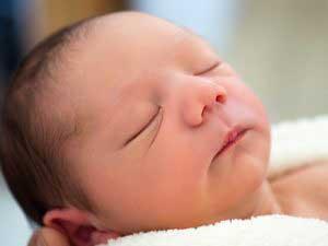 درجه درمان تغذیه در زردی نوزادی