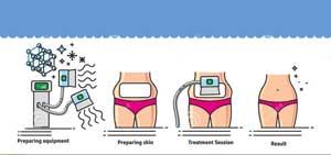کرایولیپولیز سرما درمانی عوارض لاغری پوست