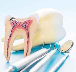 ترمیم دندان پوسیده در خانه